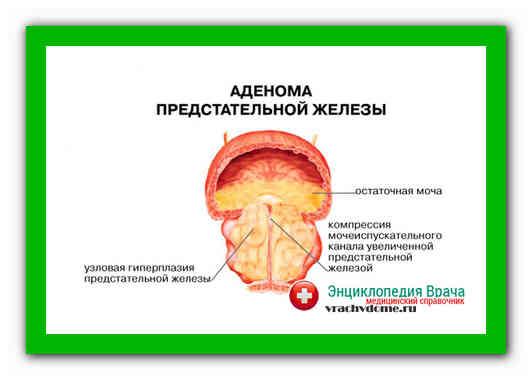 Народные средства для лечения аденомы простатиты простатит боли яичек