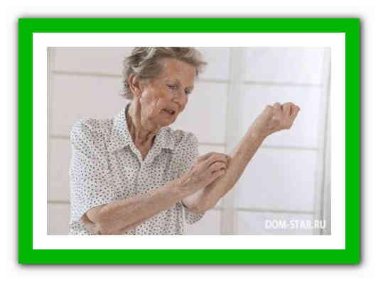 Старческий зуд кожи лечение народными средствами thumbnail