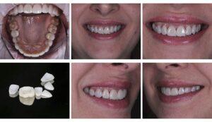 Почему мы можем потерять зубы?